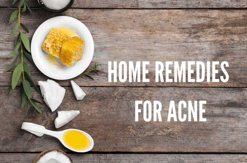 Best Acne Remedies That Will Give You A Clear Skin